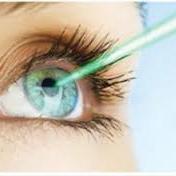 Recouvrement de vos dépenses en chirurgie oculaire et garanties proposées par les mutuelles