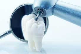 Mutuelle senior : les garanties dentaires