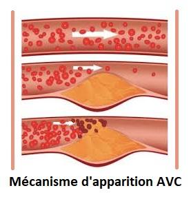 Les seniors et les accidents vasculaires cérébraux (AVC)