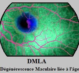 Santé des personnes âgées: le DMLA