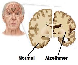 Santé des personnes âgées: la maladie d'Alzheimer