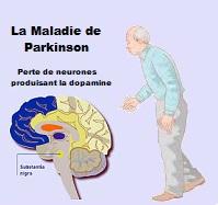 Santé des personnes âgées: la maladie de Parkinson