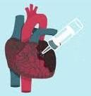 Santé des  seniors: maladies endocriniennes des troubles du rythme cardiaque