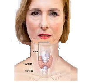 Santé des seniors: maladies endocriniennes  des troubles des hormones thyroïdiennes