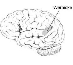 Santé des seniors : la démence de Wernicke