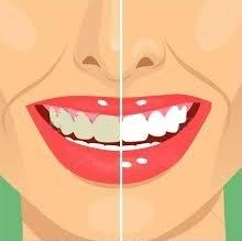 Santé senior après 50 ans: préserver sa dentition