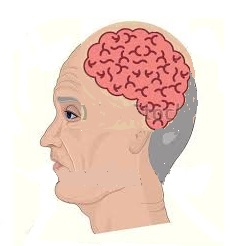 Mutuelle santé senior: les attaques cérébrales