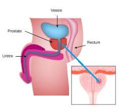 Mutuelle santé senior: le cancer de la prostate