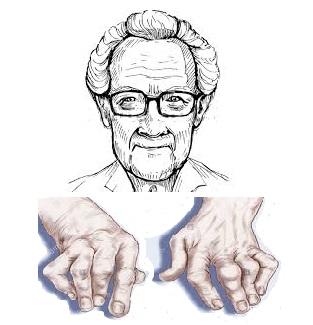 Mutuelle santé senior : la polyarthrite rhumatoïde